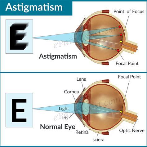 optik seis cara menyembuhkan mata silinder