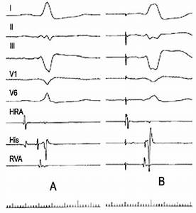 A  Electrophysiological Traces  Normal A