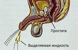 Методы лечения аденома простаты