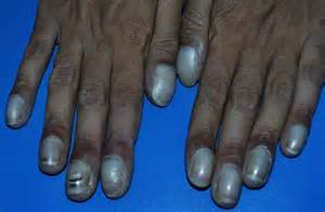 Cyanosis - Pictures