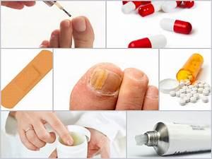 Как лечить грибок на ногтях ног лекарства