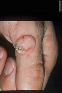 8-93-1 Ring wart after liquid nitrogen treatment