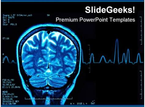 brain mri medical powerpoint template