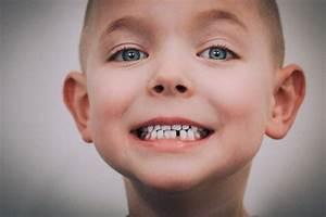 Losing Teeth  U0026 Losing Years  U2013 Brady Layne