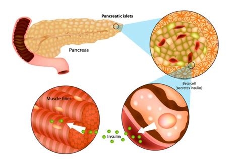Pancreas and Diabetes Type 2