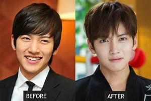 21 Korean Celebs Who Have Undergone Cosmetic Procedures Or ...