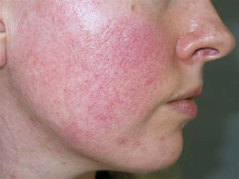 rosacea  red  primary care bpj