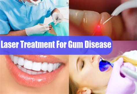 Laser Treatment For Gum Disease  How To Treat Gum Disease. Tummy Tuck Breast Augmentation Before After. Trends In Mobile Banking Fremont Family Dental. How To Start A Shopping Website. How Do I Get Incorporated Seo Company Raleigh. Cheapest Online College Degree. Study Abroad Mba Programs Sugar Land Plumbing. Buy Cheap Health Insurance Sands Expo Events. Medical Collections On Credit Report