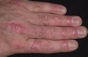 Высокотехнологичное лечение псориаза