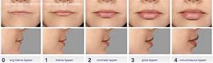 Botox lippen prijs