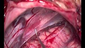 Microsurgical Fenestration Of A Right Cerebellopontine