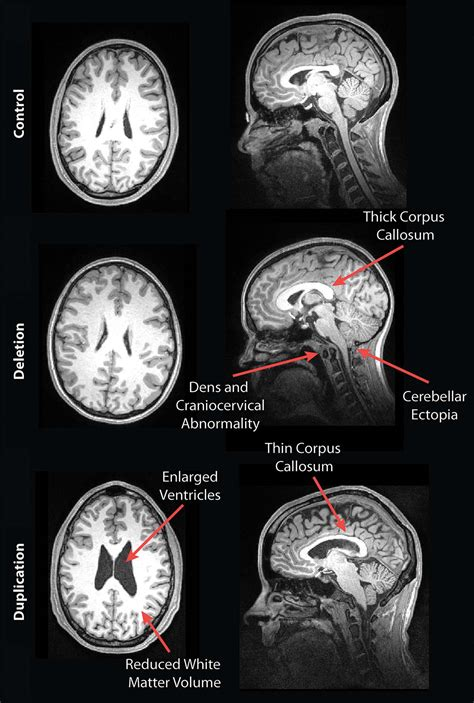 mri reveals striking brain differences  people