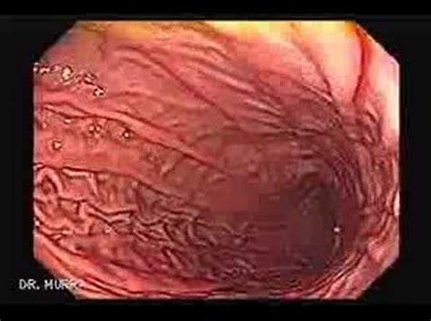 high resolution video endoscopy youtube