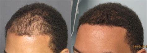 Fue Hair Transplant Los Angeles | Dr. Sean Behnam