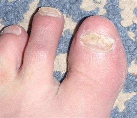 Blood Blister On Toenail How You Can Do It At Home