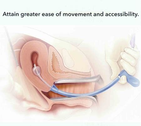 Laparoscopically-assisted Vaginal Hysterectomy (LAVH ...