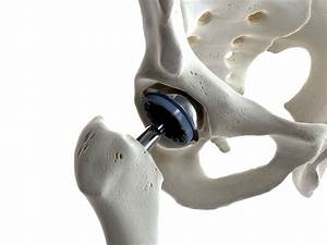 A Basic Guide To Joint Replacement Surgery