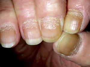 Состояние ногтей и псориаз