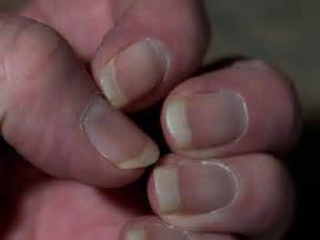 receding nail bed business news 20 jul 2014 15 minute news the news