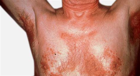 seborrhoische dermatitis seborrhoisches ekzem