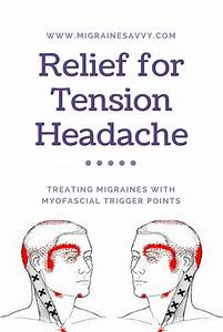 Myofascial Trigger Points  Relief For Tension Headache