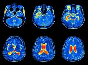 Image result for neuropsychiatric lupus