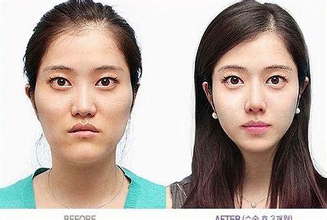 kandeejcom   unrecognizable plastic surgery  afters