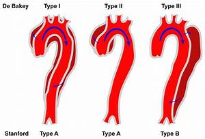 Classification Of Aortic Dissection  Schematic Diagram Of