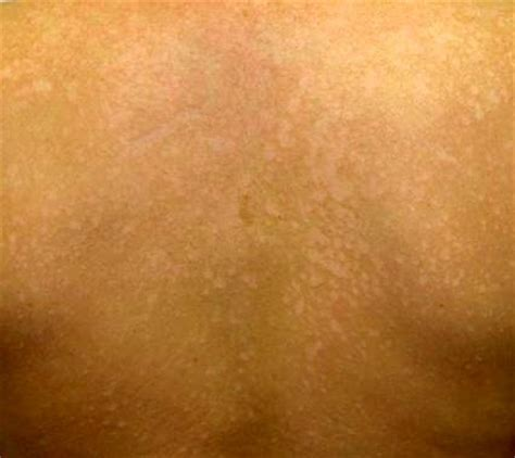 Wood L Examination Of Tinea Versicolor by 100 Wood L Examination Of Tinea Versicolor Tinea