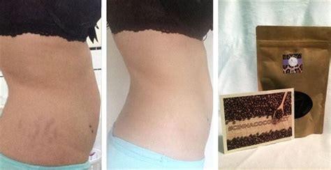 Cinnamon COCO Cellulite & Stretch Marks Eliminating Coffee Scrub   Jane