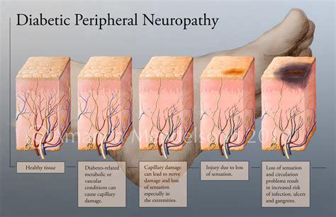 natural treatment  diabetic neuropathy   cure