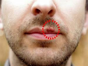 how to get rid of herpes outbreak overnight