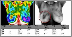 What Is Breast Thermography And Why It U0026 39 S Your Best Breast