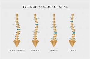 Scoliosis Center