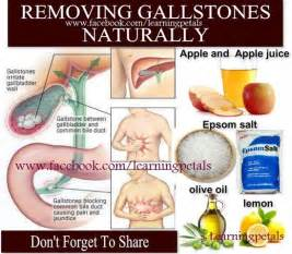 Removing Gallstones Naturally, Gallstones Symptoms, Healthy & Useful ... Gallstones