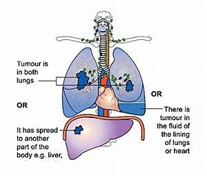 Non Small Cell Lung Cancer Staging  The Numbered Staging