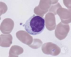 Large Granular Lymphocytes