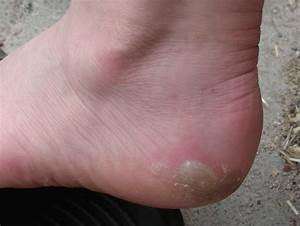 How Long Does It Take For A Blister To Heal  Step