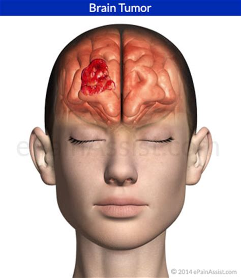 Tumor Symptoms Headache Brain Tumor Symptoms. Caution Special Signs. Food Preparation Signs. Specific Signs Of Stroke. Headmaster Signs. Cytology Signs. Crosswalk Signs. 11 July Signs Of Stroke. Cafe Paris Signs Of Stroke