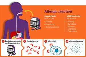 What Is Anaphylaxis  A Student Guide
