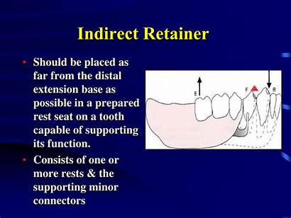 Indirect Retainers Retainer Ppt Fulcrum Line Powerpoint