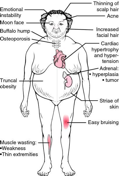 define cusion cushings disease definition of cushings disease by