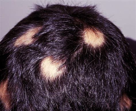 Would you rather have Male Pattern Baldness or Alopecia