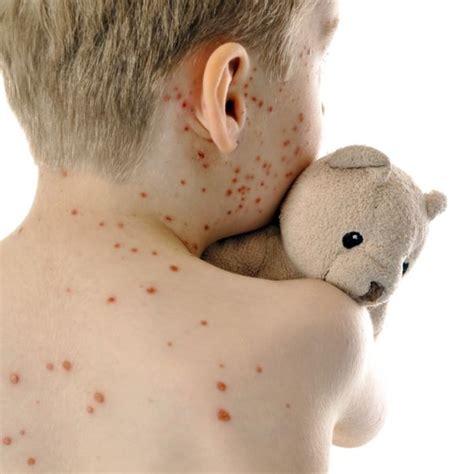 windpocken varizellen impfung ifi reisemedizin