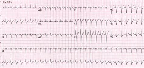 Supraventricular tachycardia (SVT). Causes, symptoms