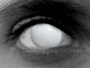 The gallery for --> White Out Contacts No Pupil