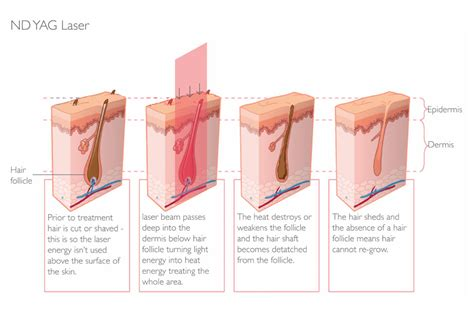 laser hair removal for light hair laser hair removal parfaire clinic