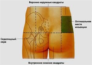 Остеохондроз шейного грудного отделов позвоночника лечение