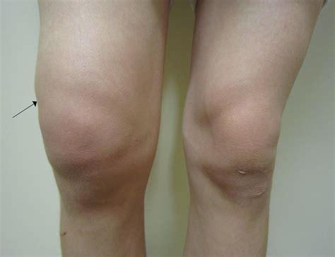 swollen knee mexico   case reports symptoms