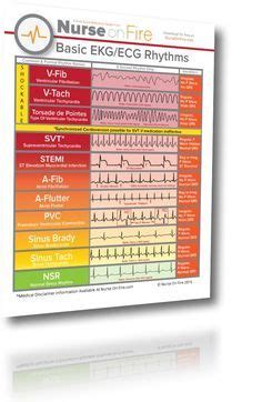 nursing ekg cheat sheet great   nurses  identify